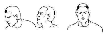 人体的破坏点:头部