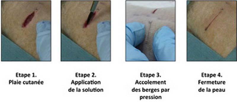 Yaraların tedavisinde modern teknolojiler