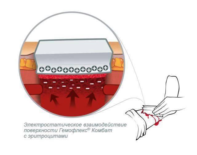 会社「Inmed」は新しい止血剤を開発しました