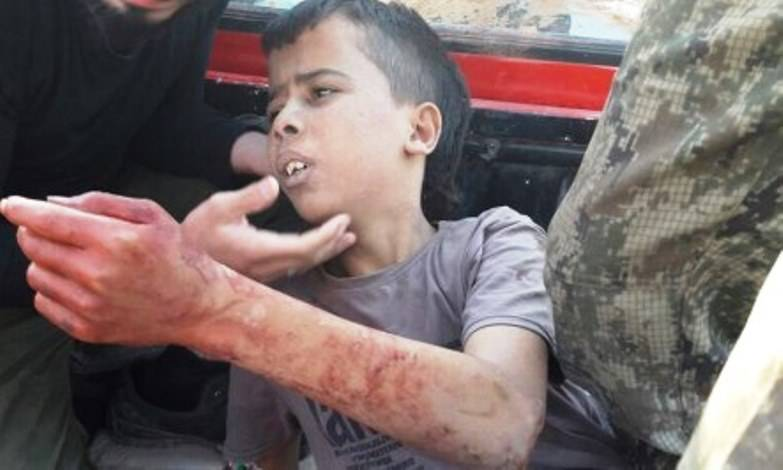 """The Syrian government appealed to the UN in connection with the execution of """"moderate opposition"""" 11-year-old child"""