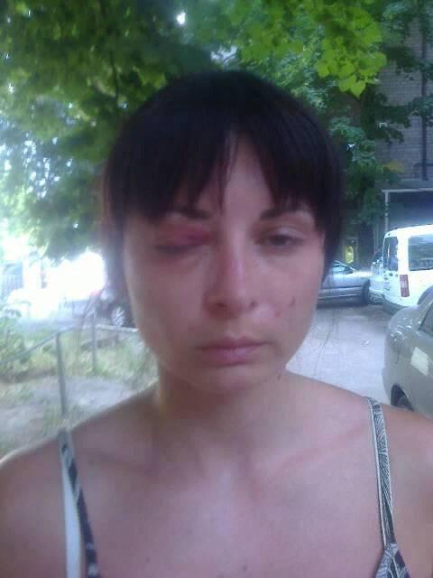 HRW - Киеву: Расследуйте эпизоды похищений и пыток людей украинскими спецслужбами