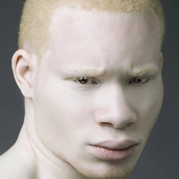 Негр альбинос по латыне