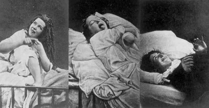 Лоботомия. История потрошения мозгов, или Самая постыдная Нобелевская премия